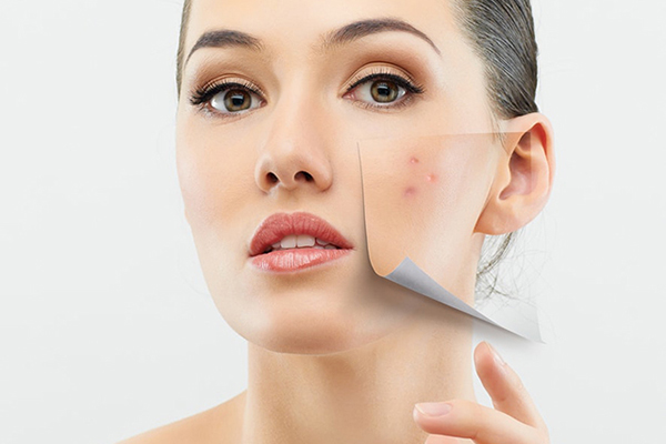 3 Best Acne Treatments in Singapore