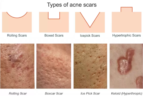 5 Ways to Fix Your Acne Scars – Ready Set Beauty  |Acne Scar Types